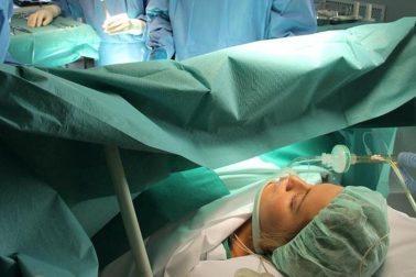 operacia2