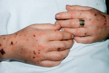 meningitida2