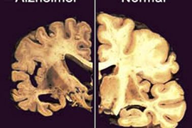 mozog5