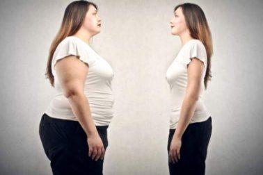 obezita1
