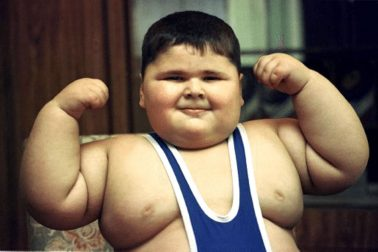 obezita5